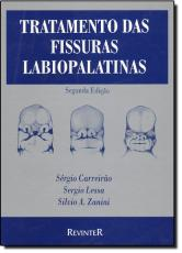 TRATAMENTO DAS FISSURAS LABIOPALATINAS - 2ª