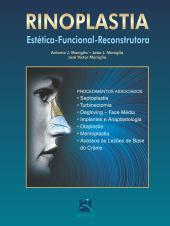 RINOPLASTIA - ESTÉTICA-FUNCIONAL-RECONSTRUTORA